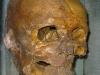 The head of Simon of Sudbury